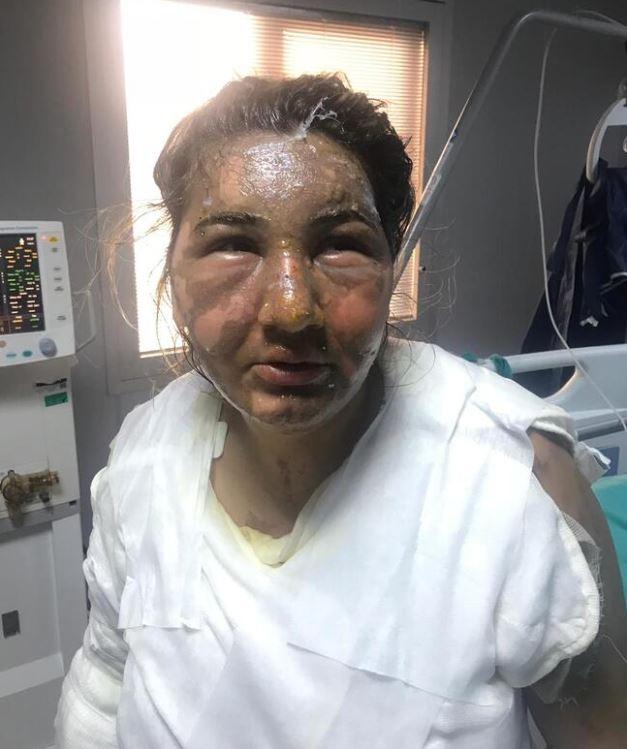 Cani eş vahşeti: Cezaevinden izinli çıktı, eski eşini kızgın yağ ile yaktı 1