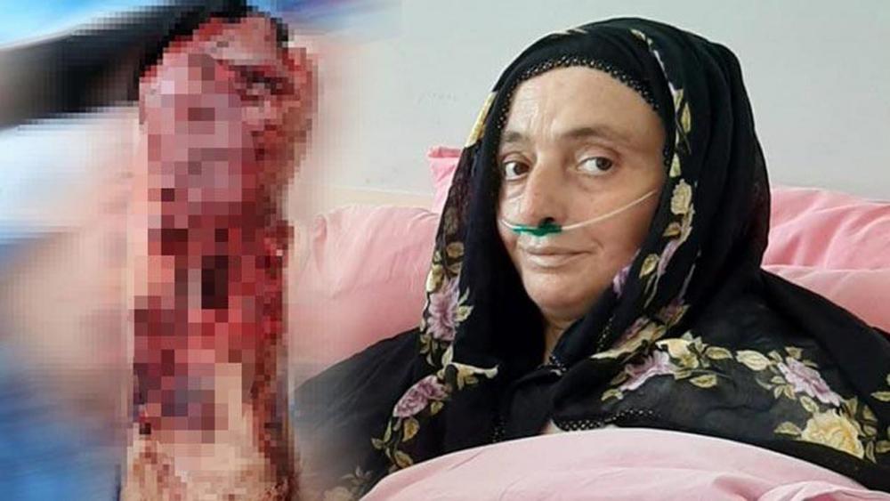 Trabzon'da 3 köpeğin saldırısına uğrayan kadının kolu kesildi! 1