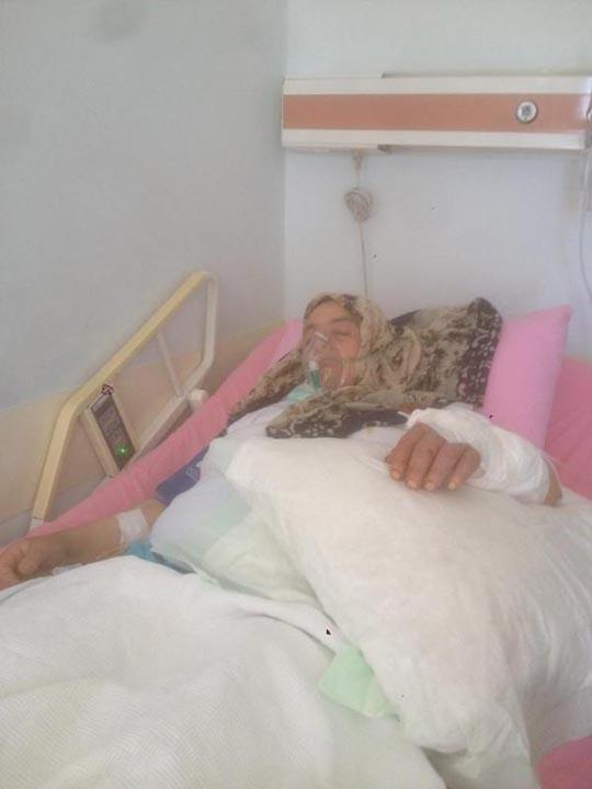 Trabzon'da 3 köpeğin saldırısına uğrayan kadının kolu kesildi! 4