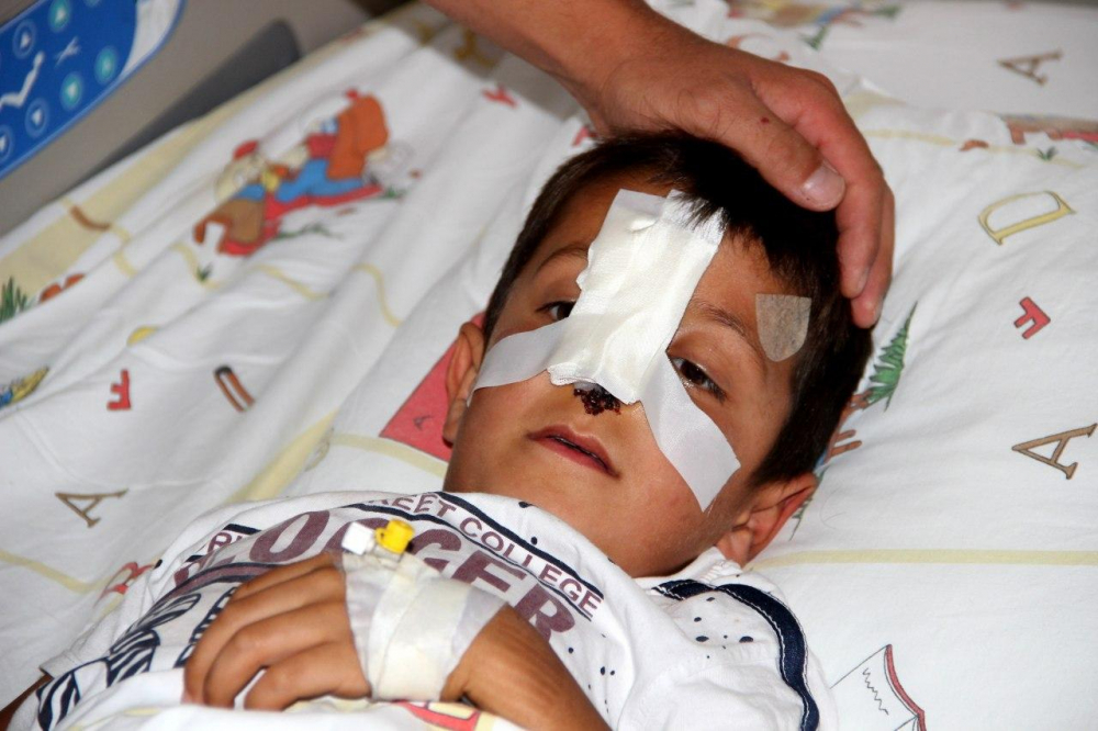 Ağrı'da başı boş gezen sokak köpekleri küçük çocuğun burnunu kopardı! 4