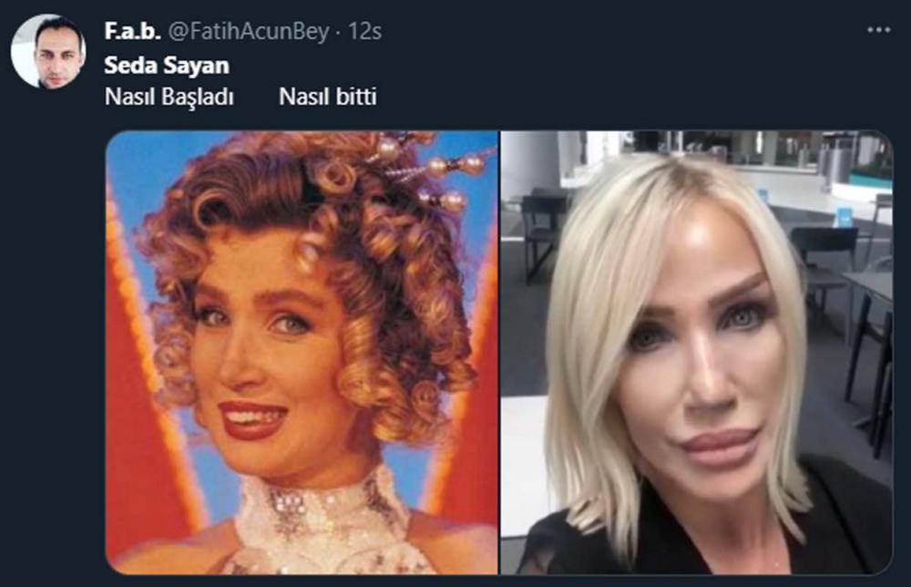 Estetikleri yine gündemde: Seda Sayan'ın son hali sosyal medyada olay oldu! Bakın kime benzetildi... 5