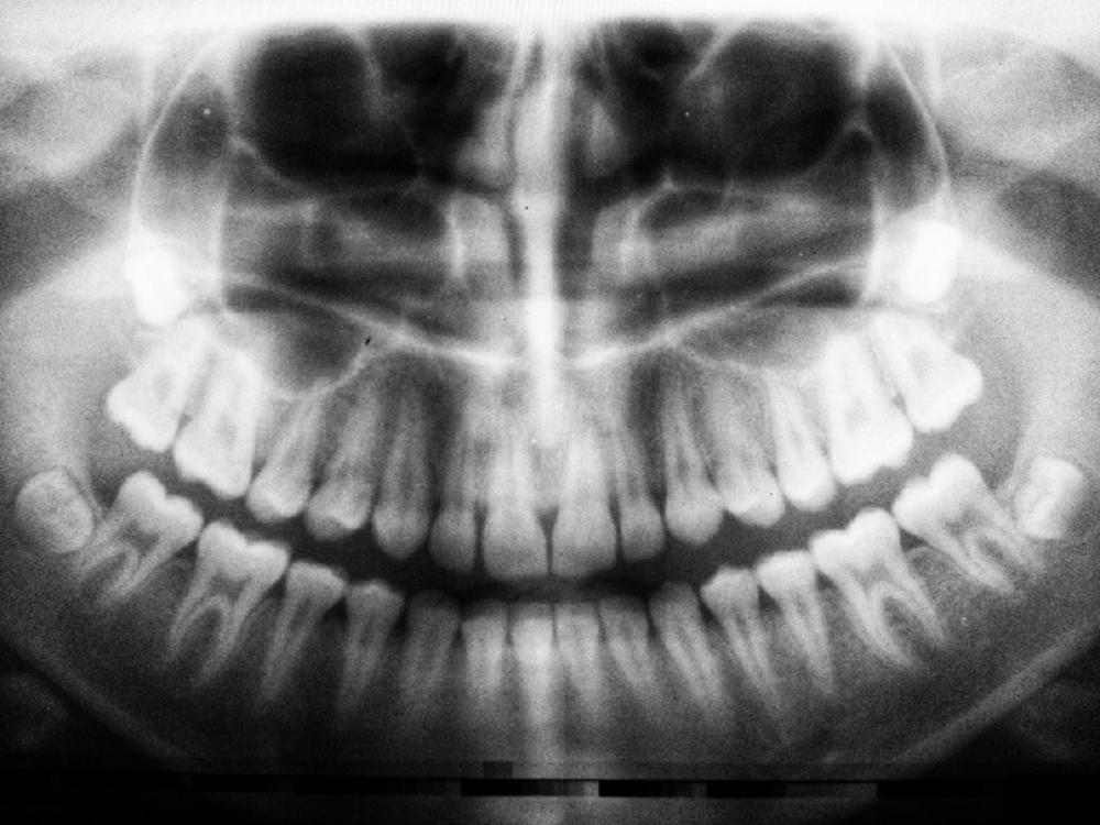 Diş çürüklerindeki hayati tehlike! Diş çürükleri kalp sağlığını etkiler mi? 3