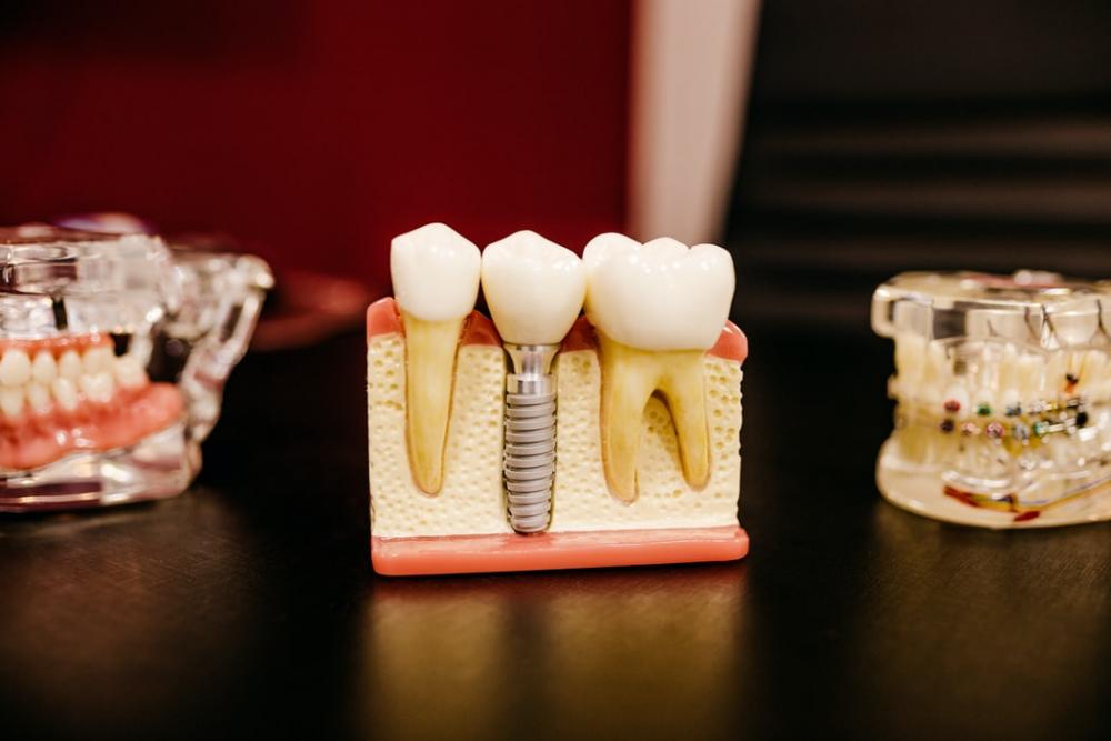 Diş çürüklerindeki hayati tehlike! Diş çürükleri kalp sağlığını etkiler mi? 8