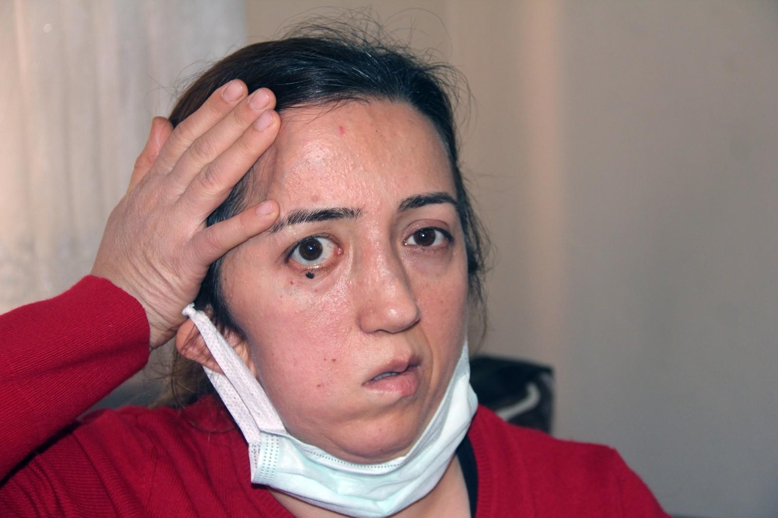 Duyanlar kulaklarına inanamıyor! Kafatasının bir bölümü ameliyat için çıkarılmıştı, o parça hastanede kayboldu