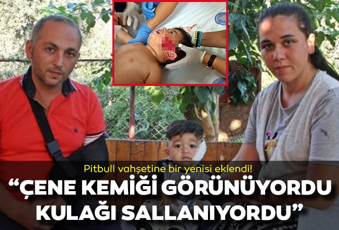 Pitbull dehşeti bu kez Antalya'da! 11 aylık çocuğun yanağı ve kulağını kopardı, babasını metrelerce sürükledi