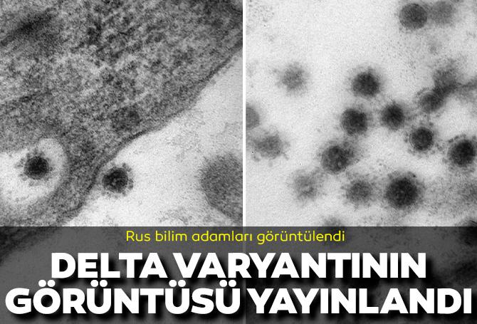 Koronavirüsün en çok yayılan varyantı Delta'nın fotoğrafları yayınlandı!