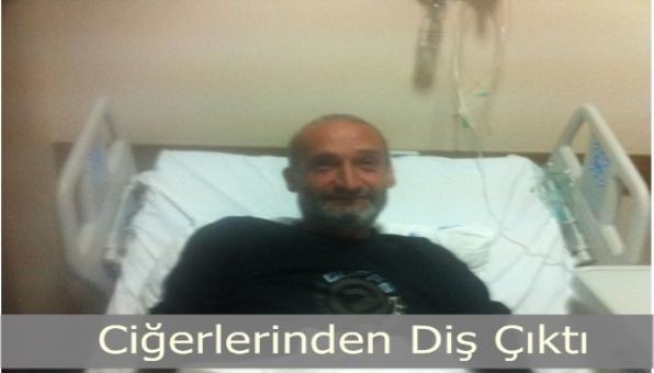 Burunoskopi Sonucu Ciğerlerinden DİŞ Çıktı