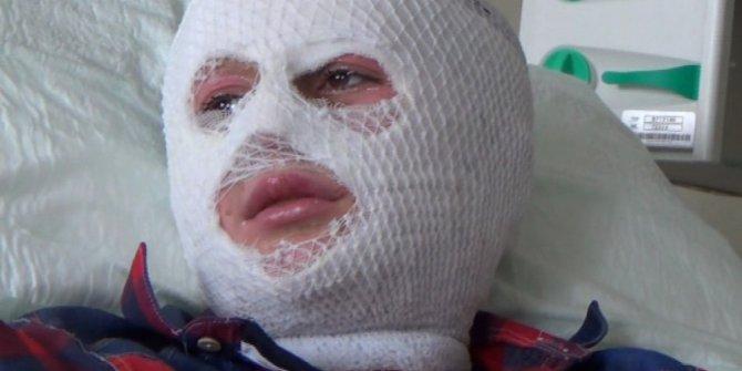 Patlayan parfüm şişesi yüzünü yaktı