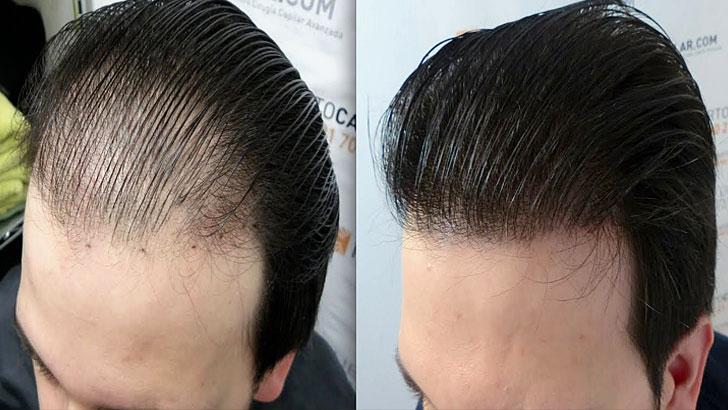 saç ekim ile ilgili görsel sonucu