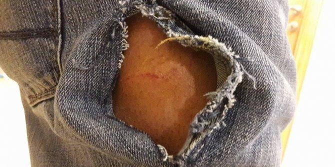 Yabancı öğrenciye köpek saldırdı