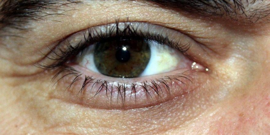 Körlükle sonlanabilecek sinsi hastalık: Glokom