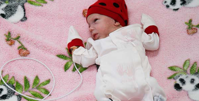 Tıp Dünyasının Konuştuğu Güneş Bebek 10 Kez Ölüm Tehlikesinden Sonra Hayata Tutundu