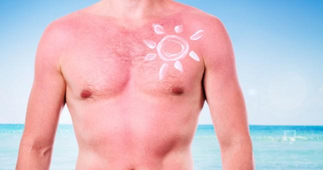 Güneş yanıkları: halk yöntemleriyle tedavi