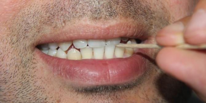 Diş hekimlerinden 'kürdan' uyarısı