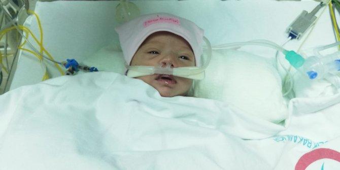 Kalp damarları ters doğan Hayat bebek, hayata tutundu