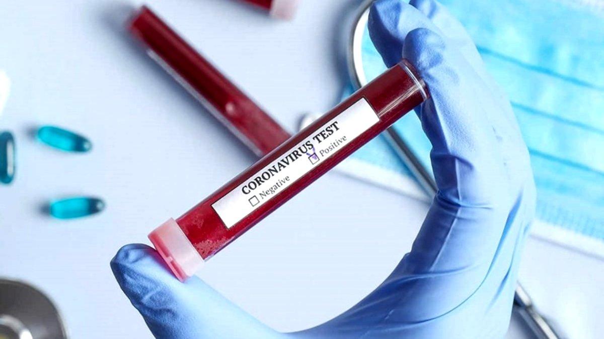 TÜBİTAK Başkanından Kovid-19 aşı çalışması için kritik açıklama