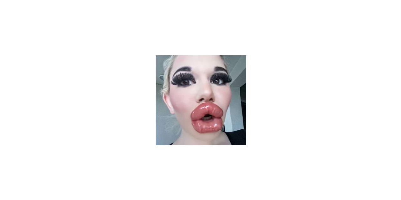 Bulgaristan'da genç kız Barbie'ye özenip 20'den fazla dudak dolgusu yaptırdı