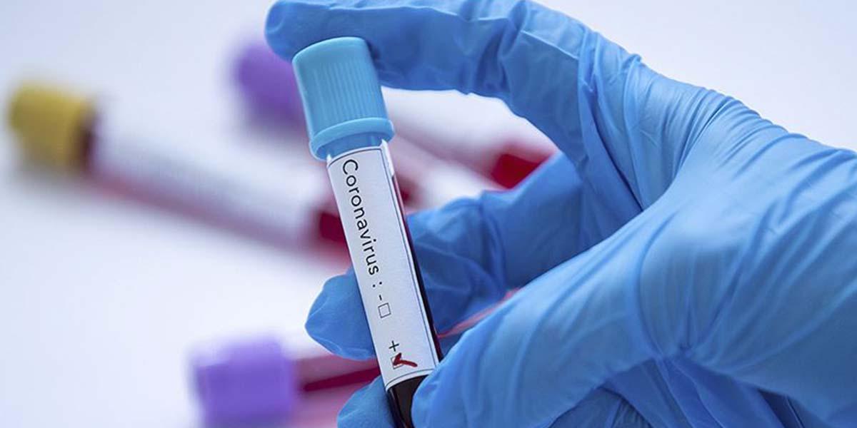 Bilim Kurulu Üyesi Kara açıkladı: Bu kan grubuna sahip kişiler risk altında