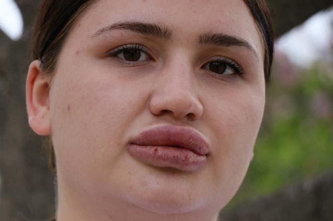Sahte estetikçi tutuklandı, Merve Hemşire sevindi