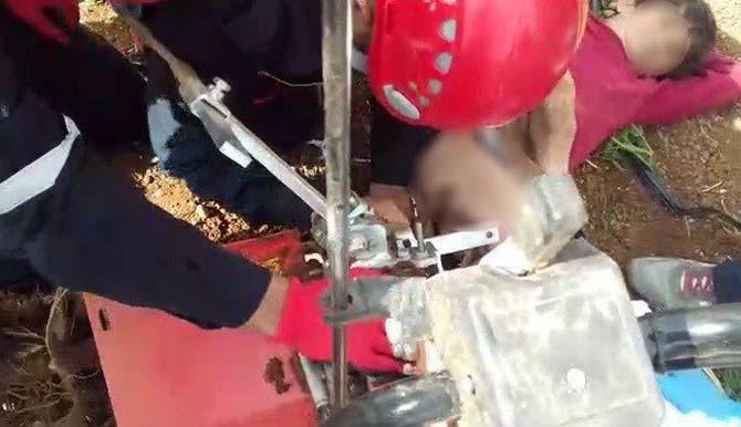 Küçük çocuk iki ayağını çapa makinesine kaptırdı