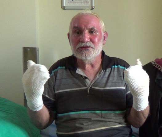Sahur için yemek ısıtmaya çalışan aşçı, biriken gazın patlamasıyla yandı