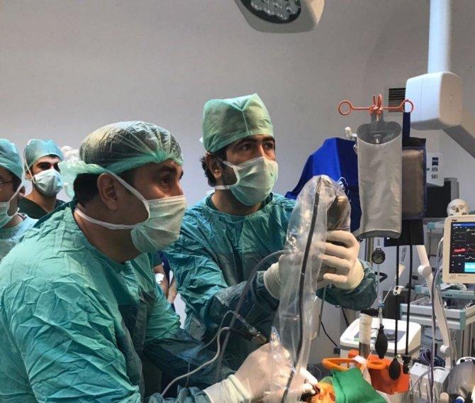 Eğitim ve Araştırma Hastanesi Adıyaman'da bir ilki gerçekleştirdi