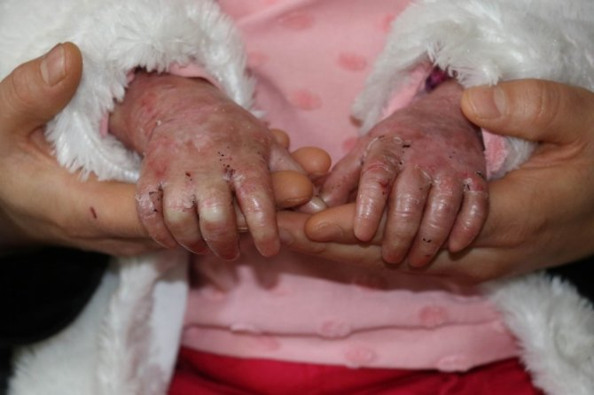 Kelebek hastası çocuklar, kendilerine uygun olmayan köpüklü sargı bezini, derilerine yapıştığı için kullanamıyor