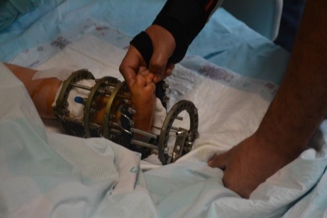 Küçük çocuğun ayak bileğindeki eğrilik ameliyatla düzeltildi