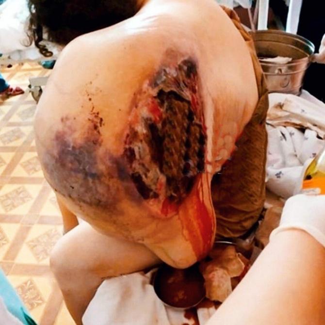 Hasta kadın omzundaki devasa tümörü taşıyamaz hale geldi