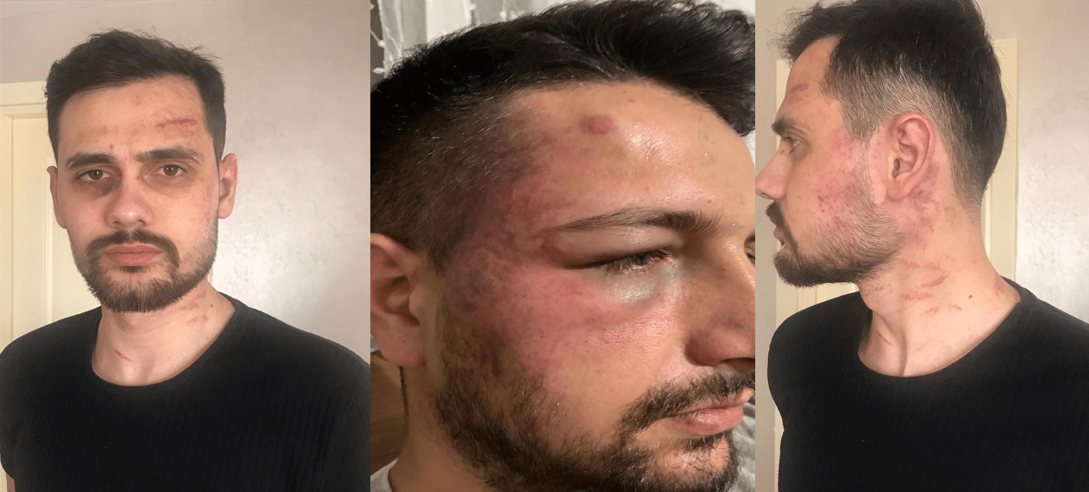 Bakan Soylu'dan polisin şiddetine uğrayan gence telefon
