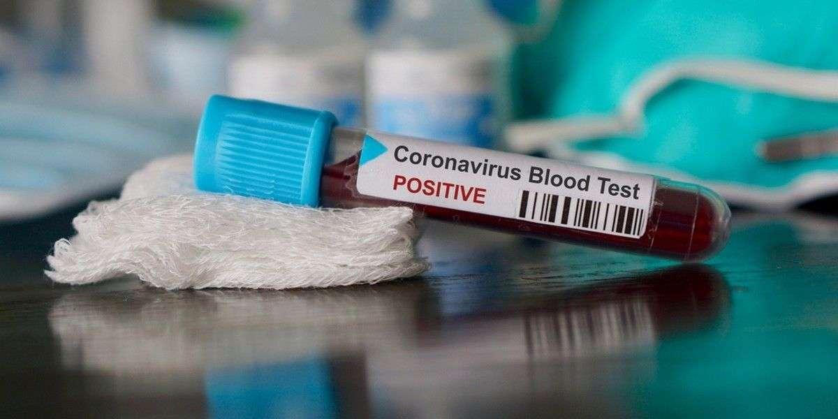 Kan gurubu ile koronavirüs arasında bir ilişki var mı?
