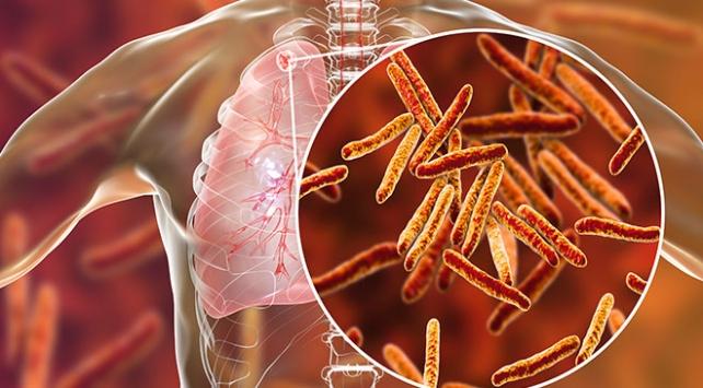Tüberküloz hastalığı nasıl bulaşır? Tedavisi nedir?