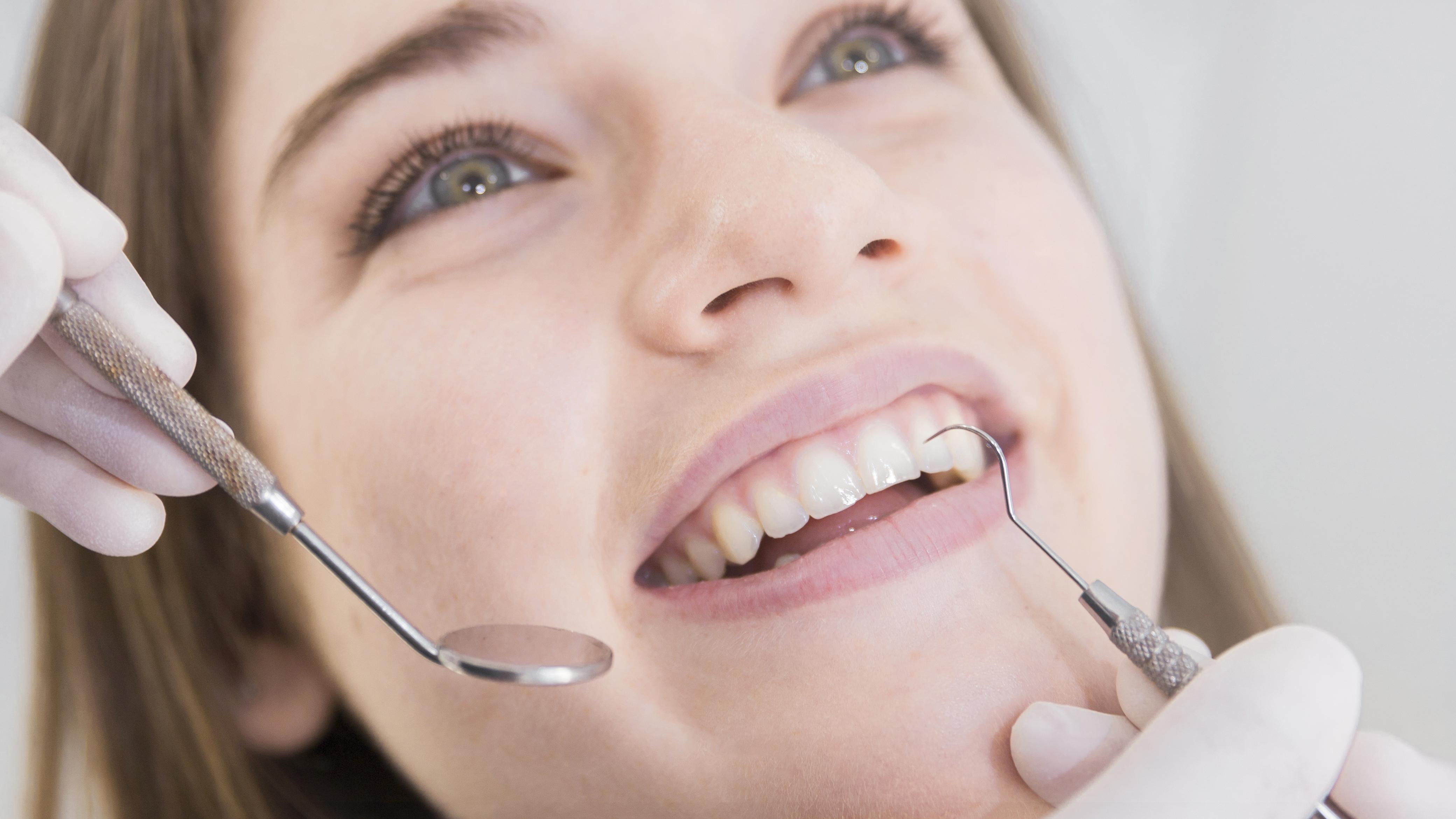 20'lik diş ağrısı nedir, nasıl olur, nereye vurur? 20'lik diş ağrısı kaç gün sürer, nasıl geçer, ne iyi gelir?