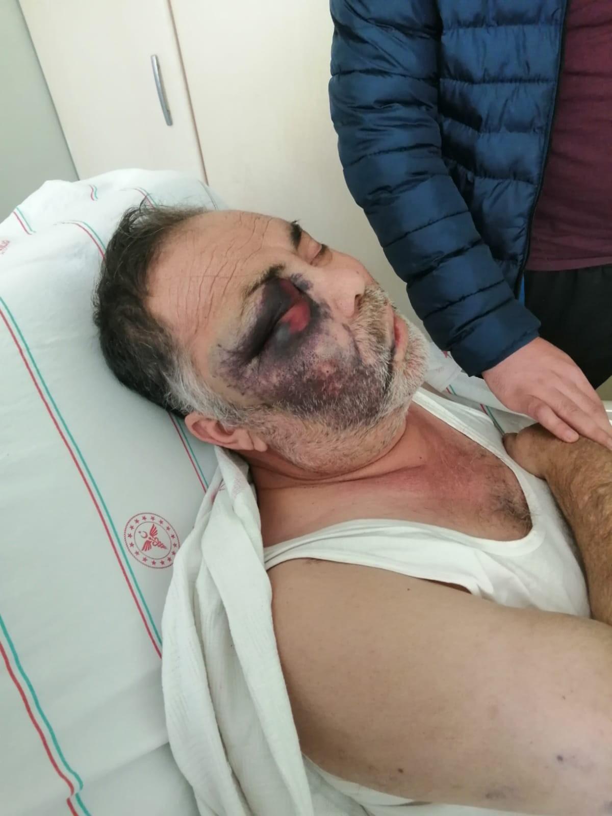 Antalya'da yüzde 90 engelli adamı öldüresiye darp ettiler