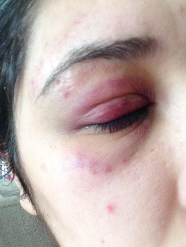 Karabükte bir genç kız alkollü avukat arkadaşı tarafından darp edildi