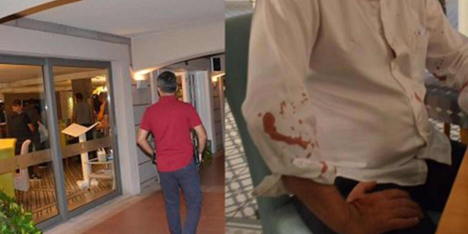 Beyzbol sopalı saldırıya uğramıştı! Didim Belediye Başkanı Ahmet Deniz Atabay hastaneye kaldırıldı!