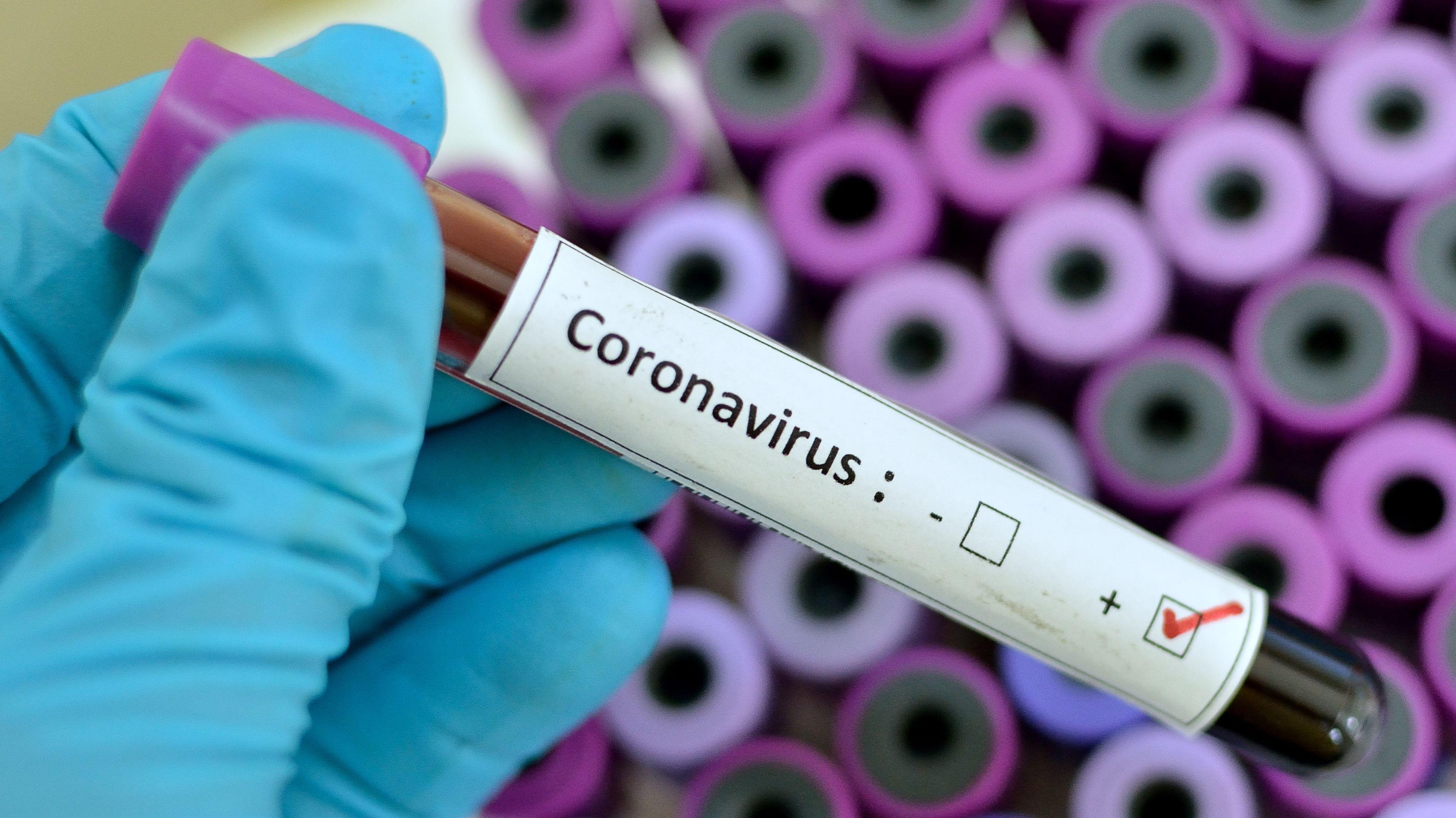 Sinovac araştırmasını yürütüyordu, kovid-19a yenik düştü! Bilim insanı koronavirüsten öldü