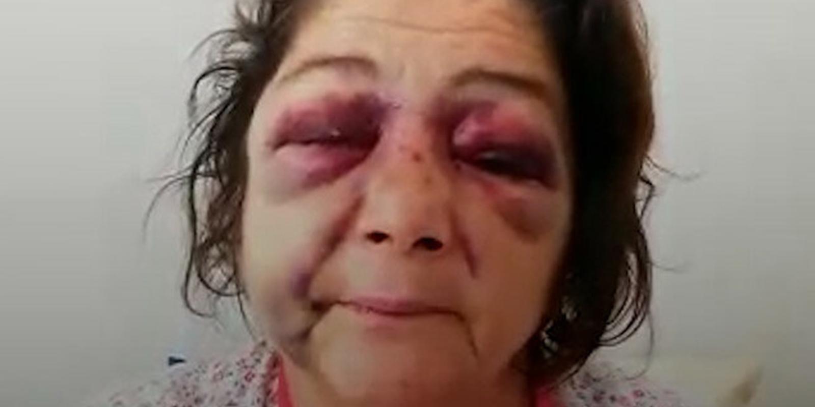 Dikkat çeken iddia! 'Park bakımsız' diyen kadın, CHP'li başkanın adamları tarafından öldüresiye dövüldü