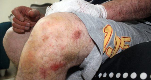 Yüzde 92 engelli gaziyi, ayaklarını uzattığı için dövdüler!