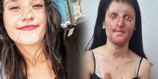 Berfin Özbek'ten şok karar! Asitli saldırganı affetti