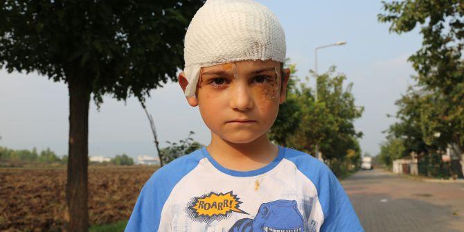 8 yaşındaki çocuğa kangal dehşeti! Başına 52 dikiş attılar
